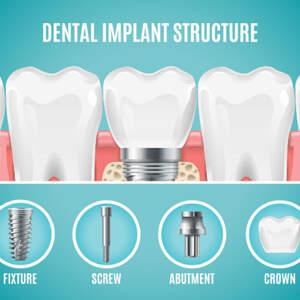 Pardip Sansi Dental Implants