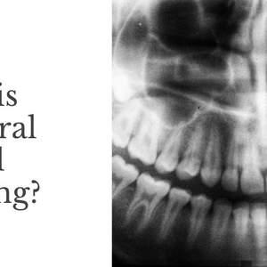 Paul_Vigario___Connecticut___What_is_Intraoral_Digital_Imaging_.jpg